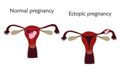 أعراض الحمل خارج الرحم
