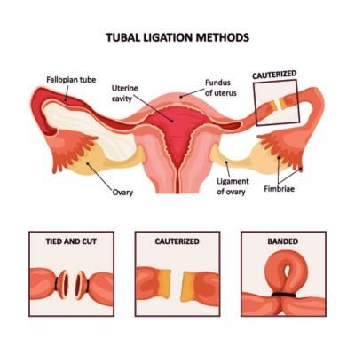 عملية ربط قنوات فالوب لمنع الحمل