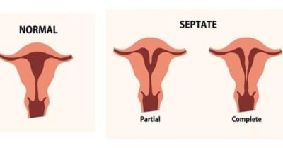 هل يؤثر الرحم ذو القرنين على نسب حدوث الحمل ؟