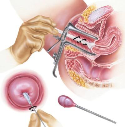 أهمية مسحة عنق الرحم