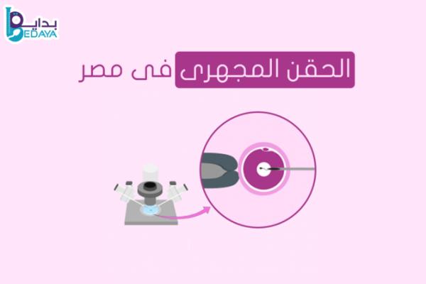 الحقن المجهري فى مصر