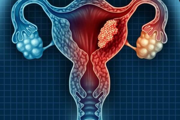 مراحل سرطان الرحم وأهم الأعراض وطرق العلاج