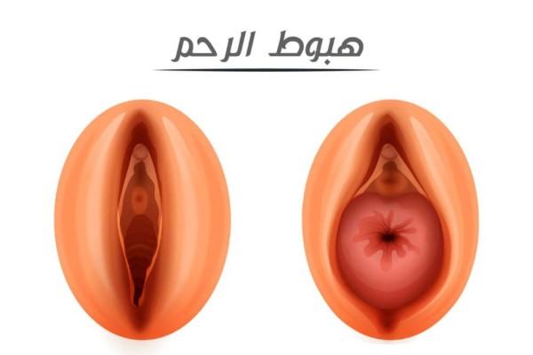 هبوط الرحم - المراحل والعلاج